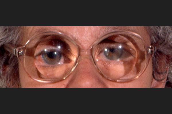 Patiente porteuse de lunettes d'aphake