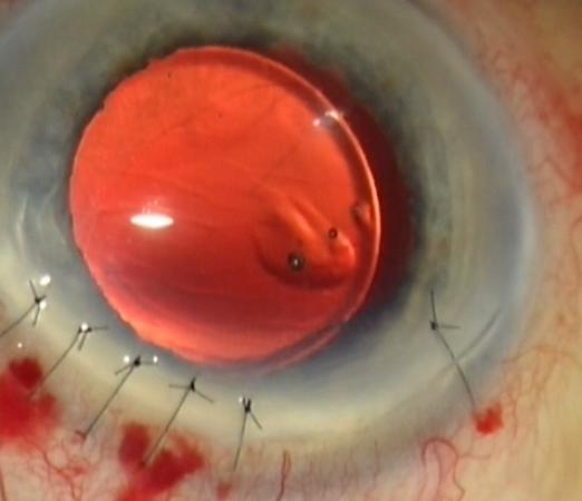 Complément de suture de l'incision