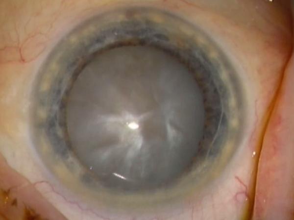 Cataracte intumescente