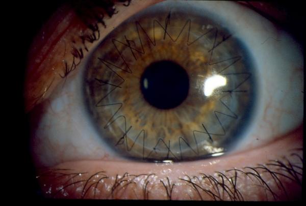 Greffe de cornée en place suturée par huit points
